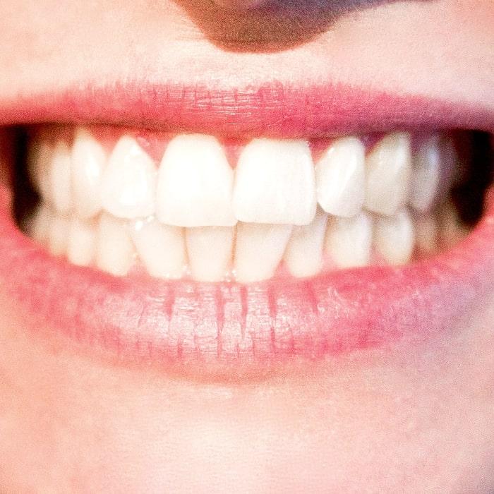 Multiclínica Palombini Odontologia - Dentística-min